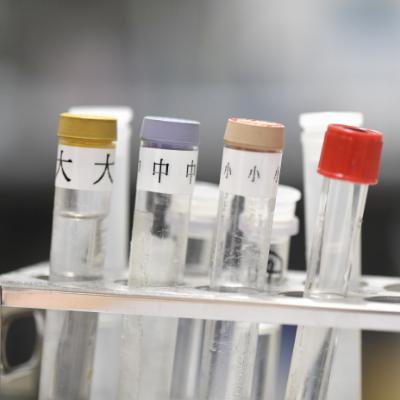 マイクロアレイ血液検査とは